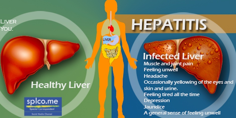 the different types of hepatitis viral disease Hepatitis, a general term referring to inflammation of the liver, may result from various causes, both infectious (ie, viral, bacterial, fungal, and parasitic organisms) and noninfectious (eg, alcohol, drugs, autoimmune diseases, and metabolic diseases) this article focuses on viral hepatitis, which accounts for more than 50% of cases of acute.